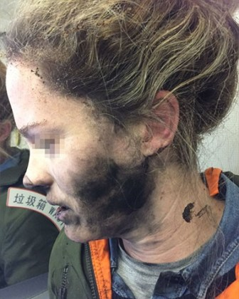 Airline passenger burned when headphone battery explodes mid-flight