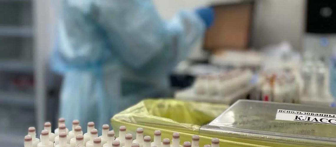В Югре снизилось число выявляемых случаев ВИЧ