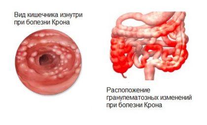Основные причины появления скрытой крови в кале у ребенка