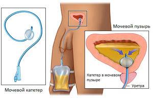 katéter a prosztatitis után)