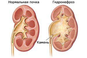 Vizelet Bakoftv prosztatitis