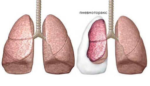Перелом ребра симптомы и лечение