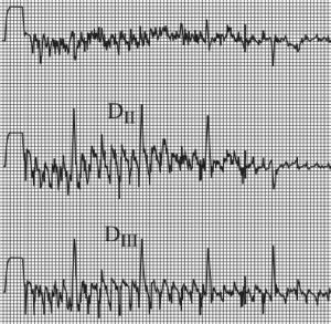 Tracé ECG modifié par des tremblements du patient