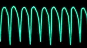 Tracé sur le scope d'une Tachycardie ventriculaire