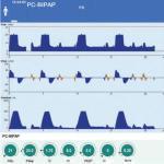 Affichage des courbes et réglages en BIPAP