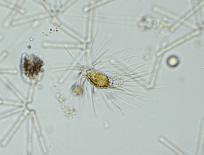 Mallomonas caudata, a scaled, bristled synurophyte.