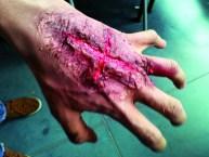 camilo ferida