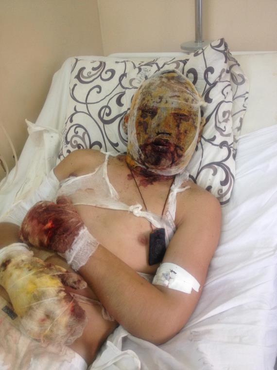 Dorzhi Batomkunuev in the hospital