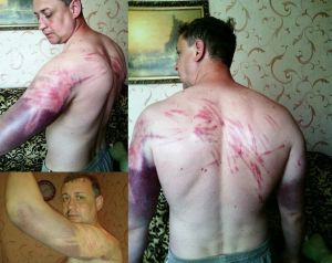 Pastor Sergey Kosyak after being tortured by mercenaries in the Russia-occupied territory of Donbas.
