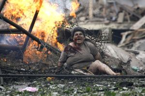 Russian invasion in Georgia in August 2008. A wounded Georgian woman in the town of Gori, 80 km (50 miles) from Tbilisi. (Image: Reuters)