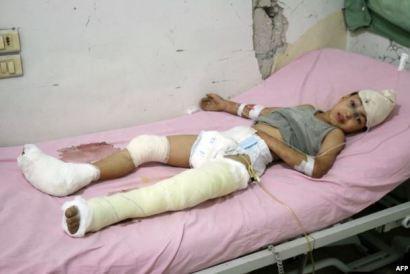 Victim of Aleppo bombing, October 12, 2016