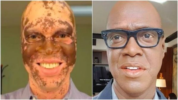 TV Reporter on Why He Uses Makeup to Hide Vitiligo from Viewers [VIDEO]
