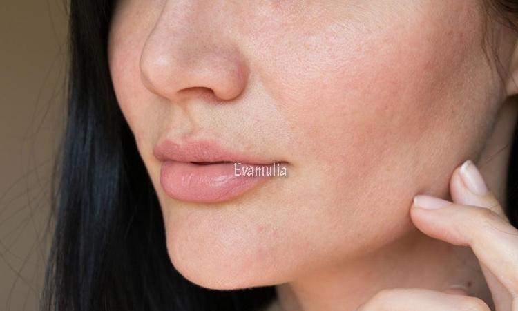 Eva Mulia - Klinik Evamulia - Perawatan Wajah - Jerawat Rosacea - Penyebab Rosacea - Jerawat rosacea adalah penyakit kronis (jangka panjang) yang mempengaruhi kulit dan terkadang mata. Ciri-ciri dari kondisi ini yaitu adanya jerawat, kemerahan, dan penebalan kulit pada tahap lanjut. Biasanya rosacea sering terjadi pada wajah. Kulit pada bagian atas tubuh jarang timbul.