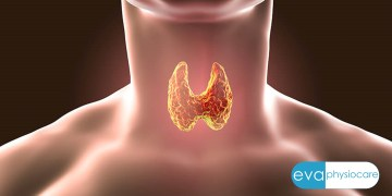 Hypothyroidism and Nutrition Therapy