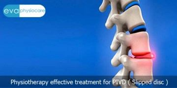 Evidence based physiotherapy treatment for PIVD: an alternative to painful surgery!