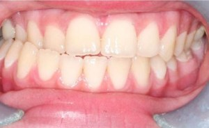 crossbite-clear-aligner-therapy