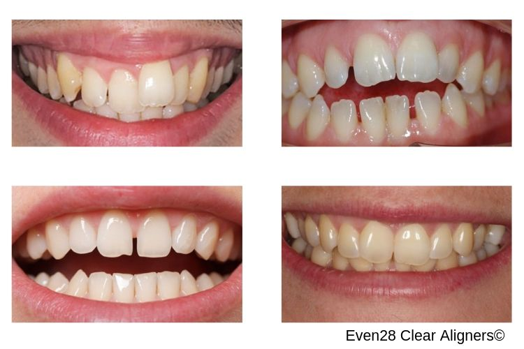 Clear-Aligners-Effectiveness