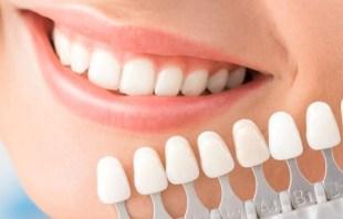 teeth-whitening-trays-instructions