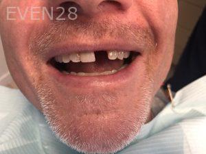 Ali-John-Jazayeri-Dental-Implant-Before-1