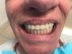 Ali-John-Jazayeri-All-on-Four-Dental-Implant-After-2-2