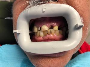 Ali-John-Jazayeri-All-on-Four-Dental-Implant-Before-3