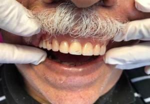 Ali-John-Jazayeri-All-on-Four-Dental-Implant-After-3-2