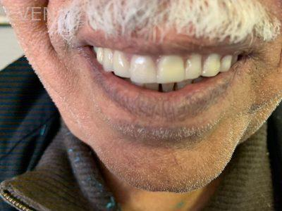 Ali-John-Jazayeri-Dental-Implant-Teeth-IOn-A-Day-After-10