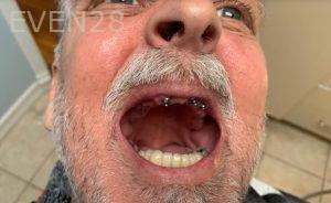 Ali-John-Jazayeri-All-On-Four-Dental-Implant-Before-12