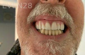 Ali-John-Jazayeri-All-On-Four-Dental-Implant-After-15