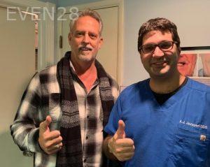 Ali-John-Jazayeri-All-On-Four-Dental-Implant-After-16