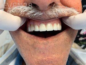 Ali-John-Jazayeri-Dental-Implant-Teeth-In-A-Day-After-3
