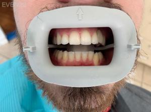 Ali-John-Jazayeri-Dental-Implant-After-8