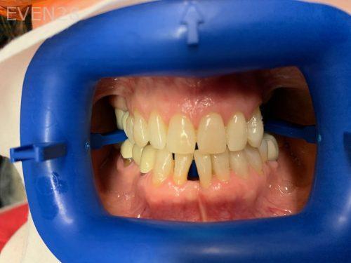 Ali-John-Jazayeri-Teeth-Whitening-Before-1