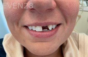 Ali-John-Jazayeri-Dental-Implant-Before-17