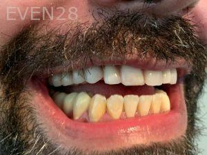 Ali-John-Jazayeri-All-On-Four-Dental-Implant-After-26