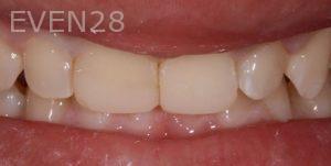 Joseph-Kabaklian-Dental-Bonding-After-1
