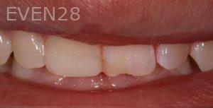 Joseph-Kabaklian-Dental-Bonding-Before-1