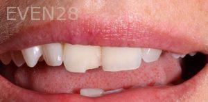 Joseph-Kabaklian-Dental-Bonding-Before-2
