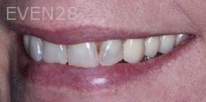 Joseph-Kabaklian-Dental-Bonding-Before-3