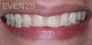 Joseph-Kabaklian-Dental-Bonding-Before-5