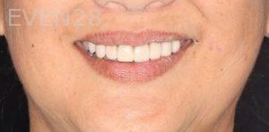 Joseph-Kabaklian-Smile-Makeover-After-2