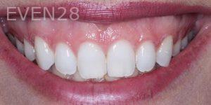 Joseph-Kabaklian-Smile-Makeover-Before-7