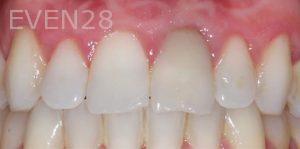 Joseph-Kabaklian-Teeth-Whitening-After-2