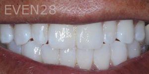 Joseph-Kabaklian-Teeth-Whitening-After-3