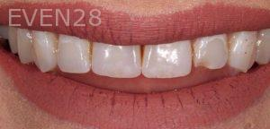 Joseph-Kabaklian-Teeth-Whitening-After-5