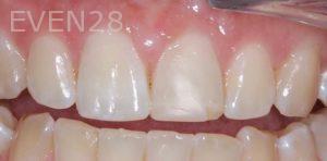 Joseph-Kabaklian-Teeth-Whitening-Before-6