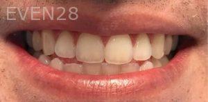 Joseph-Kabaklian-Teeth-Whitening-Before-7