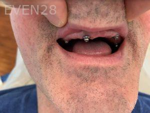 Ali-John-Jazayeri-Dental-Implant-All-on-Four-Before-1b