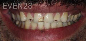 Amir-Larijani-Full-Mouth-Restoration-before-1