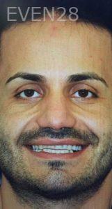 Amir-Larijani-Smile-Makeover-before-5